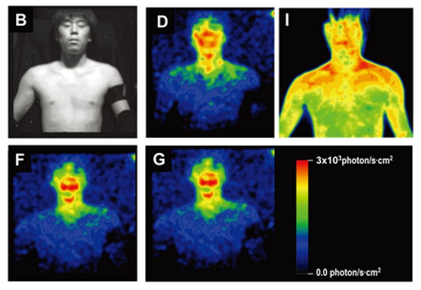 lrg-1179-glowing-humans-auras-thermographic-image-ultraweak-photon-emission.jpg